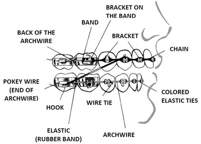 Middleton Orthodontics | Orthodontic Care